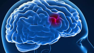 الوقاية من السكتات الدماغية