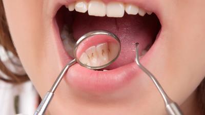 اغذية تؤدي الى تسوس الاسنان
