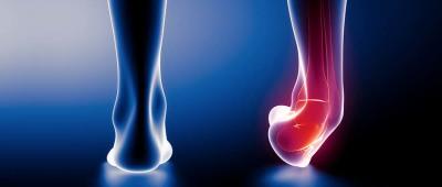 التواء مفصل القدم