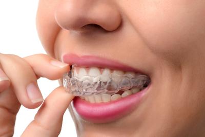 تقنيات علاج سوء اصطفاف الأسنان