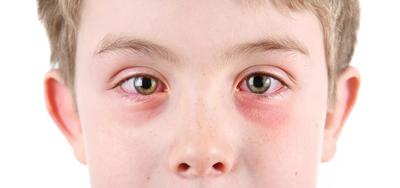 كيف تتغلب على أعراض حساسية الربيع