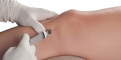 حقن البوتوكس في علاج تشنج (شد) العضلات عند الأطفال