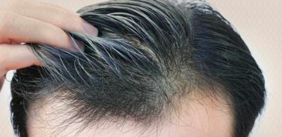 زراعة الشعر لعلاج حالات الصلع