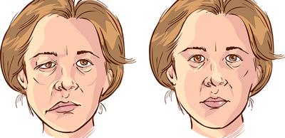 شلل الوجه النصفي يتسبب بضعف مفاجئ لعضلات الوجه