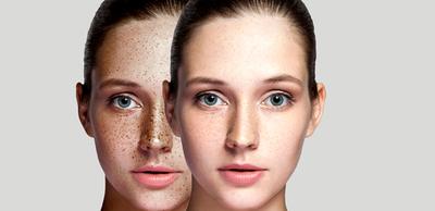 أسباب تصبغات الجلد وظهور البقع البنية