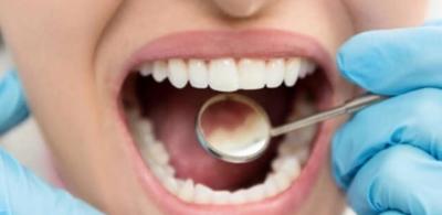 تأثير ارتجاع المريء على صحة الفم والأسنان