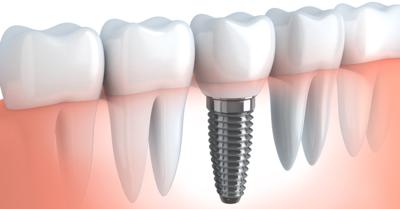 أسباب ومخاطر جراحة زراعة الأسنان