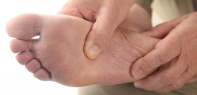 التدابير الوقائية والعلاجية لمسامير القدم