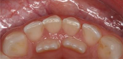 ظهور أسنان خلفية لدى الطفل: هل تستدعي القلق؟