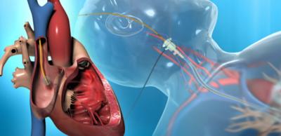 أسئلة وأجوبة حول قسطرة القلب
