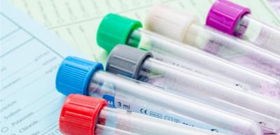 الأدوية والمكملات الغذائية المؤثرة على نتائج التحاليل المخبرية