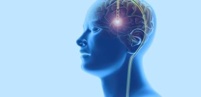 معلومات مثيرة عن التحفيز العميق للدماغ