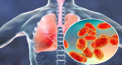 التهابات الجهاز التنفسي السفليLower respiratory tract infections
