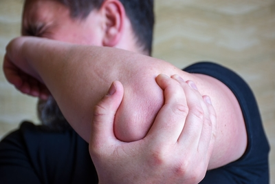 متلازمة العصب الزندي
