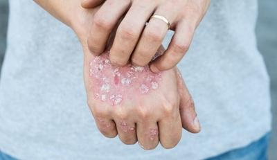 أمراض جلدية غير معدية وطرق علاجها