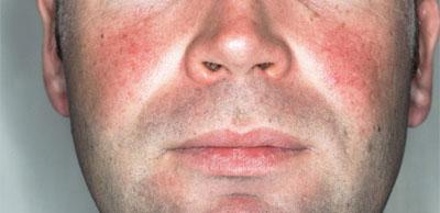 أسباب وعلاج احمرار الجلد