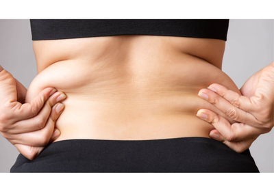 ترهل الجلد بعد شفط الدهون
