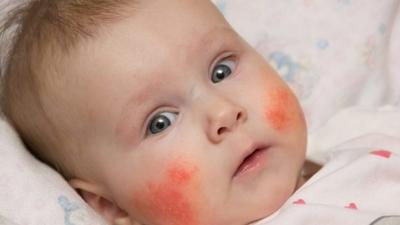 عشر نصائح تساعد على تجنب إصابة  الأطفال بالأكزيما