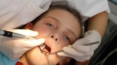 ما أهمية علاج الاسنان اللبنية