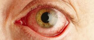 التهاب القزحية (الأسباب والعلاج)