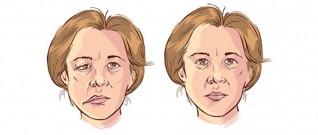العصب السابع يشل الوجه.. والعلاج يكون بالوقاية والتدليك