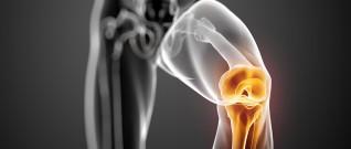 مفصل الركبة الاصطناعي الاسلامي