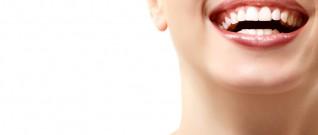 تبييض الاسنان هل له اضرار؟