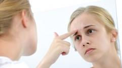 معلومات حول دواء حب الشباب أيسوتريتينوين