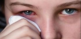 علاج التهاب الملتحمة بالاعشاب