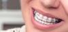 تقويم الاسنان . ضرورة أم تجميل ؟