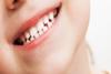 صحة أسنان الجنين تبدأ من طعام وصحة المرأة الحامل