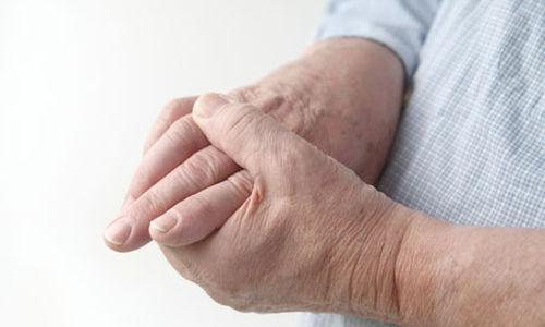 زيادة معدال الاصابة بالنقرس مع ارتفاع مؤشر كتلة الجسم