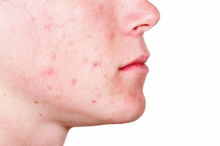 نصائح من اطباء الجلدية لتقليل حب الشباب