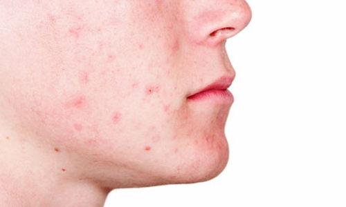 نصائح من أطباء الجلدية للتقليل من حب الشباب