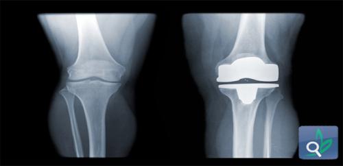 استبدال الركبة لا يؤثرعلى وظائف المرضى