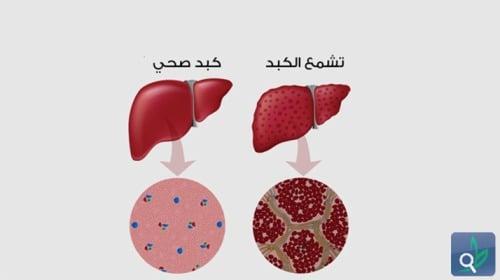 فرط تناول الطعام قد يحيجك إلى عمليات زراعة الكبد