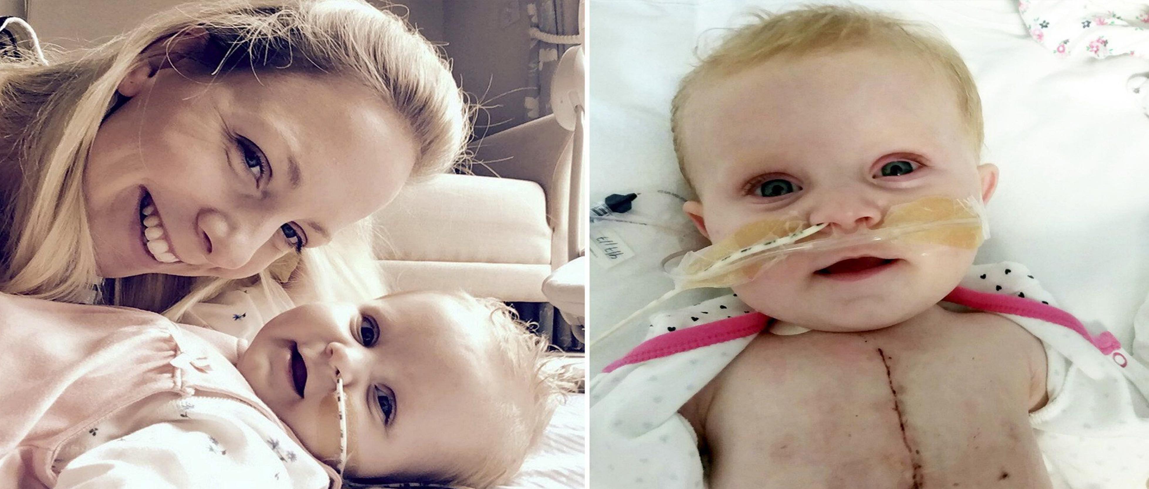 جراح أردني يصنع معجزة جراحية تنقذ طفلة