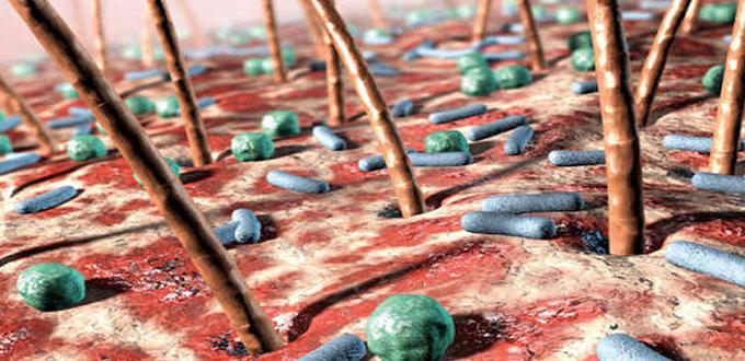 بكتيريا الجلد النافعة قد تحمي من سرطان الجلد