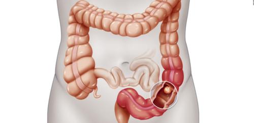 دور الأسبرين وغيره في الوقاية من سرطان القولون والمستقيم