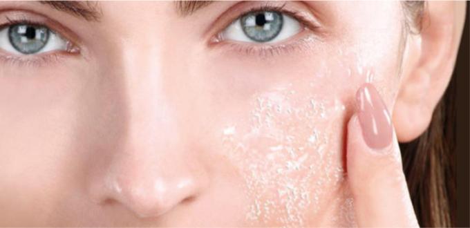 تقشر الجلد أسباب وعلاجات طبيعية الطبي