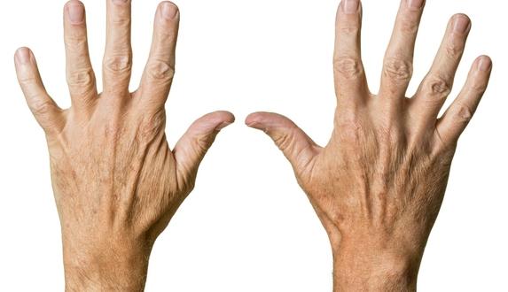 تجاعيد اليدين أسبابها وطرق طبيعية للتغلب عليها الطبي