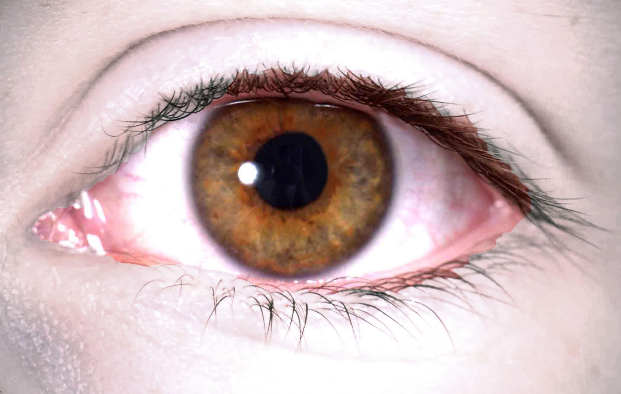 الأدوية المخفضة للكوليسترول (ستاتين) قد تمنع العمى بسبب السكري
