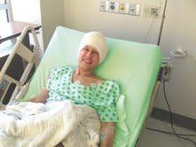 جراحة الدماغ بدون ندب خيار جديد لمرضى