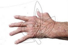 المدخنين المصابين بالروماتيزم أقل استجابة للميثوتركسات