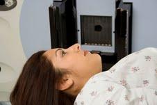 علاج أورام الدماغ بالإشعة مرتبط بالعقم