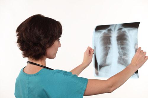 اكتشاف طريقة اسرع واقل تكلفة لتشخيص الاصابة بمرض السل