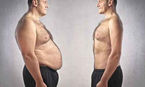 فقدان الوزن للمصابين بالسمنة قد يمنع الاصابة او يشفي من السكري