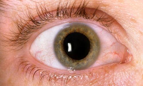 الميتفورمين قد يعالج التهابات العين لمرضى السكري