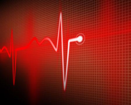 وفاة القلب تزداد مع درجات الحرارة القصوى