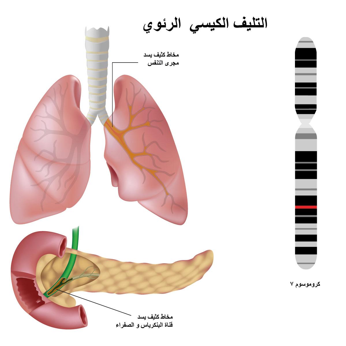 علاج محتمل للتليف الكيسي  الرئوي